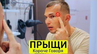 Download КОРОЧЕ ГОВОРЯ, БОРЮСЬ С ПРЫЩАМИ - ТимТим. Mp3 and Videos