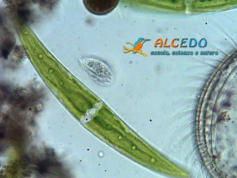 Un Ciliato tra alghe Closterium