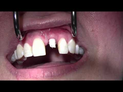 Implant Temporization #9 Site, Provisional Crown Fabrication