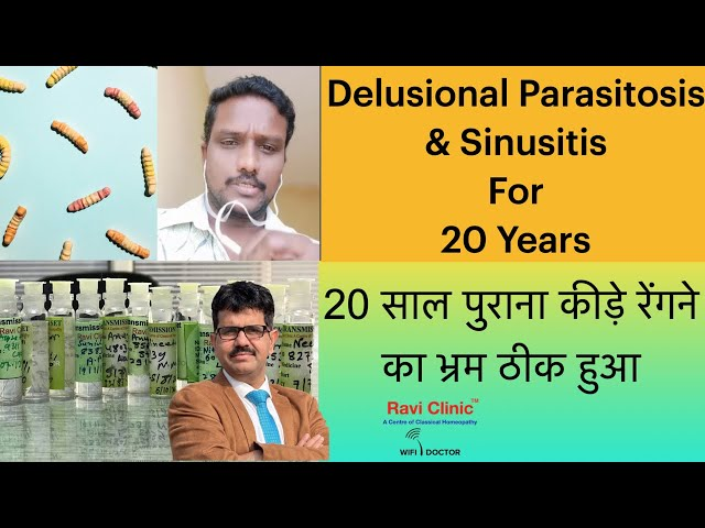 Delusional Parasitosis for 20 years and Sinusitis getting Cured