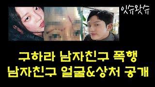 구하라 남자친구 얼굴 상처 공개 폭행사건의 놀라운 전말은?...