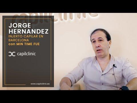 ¡ Empieza mi injerto capilar  ! Experiencia del paciente Jorge Hernandez con Capilclinic