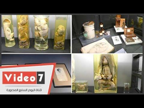 تفاصيل تحول مخزن لمتحف تفاعلى للنساء والتوليد بقصر العينى  - 20:22-2018 / 3 / 21