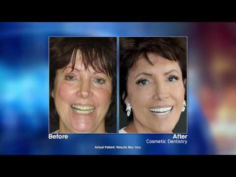 Smile Makeovers with Sarasota, FL dentist Jill Morris, DMD