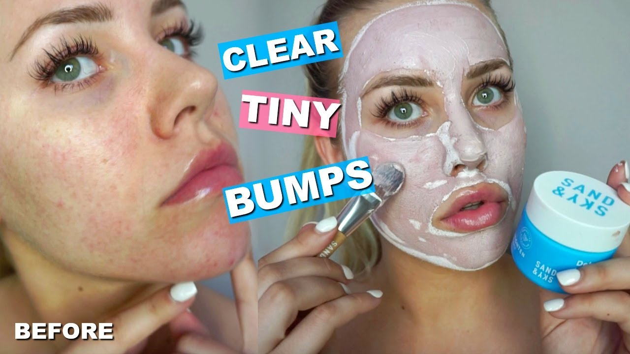 ac6da37f4c6c5 How To Clear Bumpy Skin