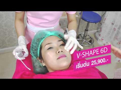 """ร้อยไหมหน้าเรียว V-Shape 6D กับ """"หมอปู"""" ที่ Atlases Clinic"""