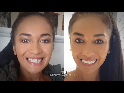 2018 Australian Bride Dental Veneers Smile Makeover by Brighter Image Lab