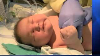 15 Pound Baby Born : U.S. Largest Baby in California