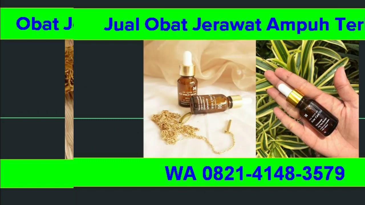Obat Alami Jerawat Paling Ampuh Untuk Wanita, WA 0821-4148 ...