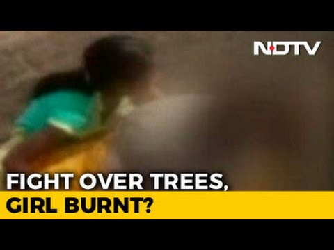 20-Year-Old Protested Cutting Of Trees, Burnt Alive In Jodhpur Village