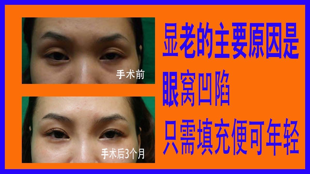 眼窩凹陷通過眼窩填充術便可重返童顏 - YouTube