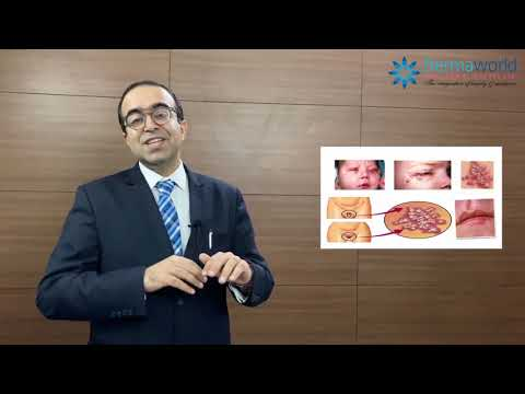 Herpes Genital - Causes, Symptoms, Diagnosis, Treatment | Dr Rohit Batra | In English