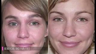 What is an Ultrasonic Facial?
