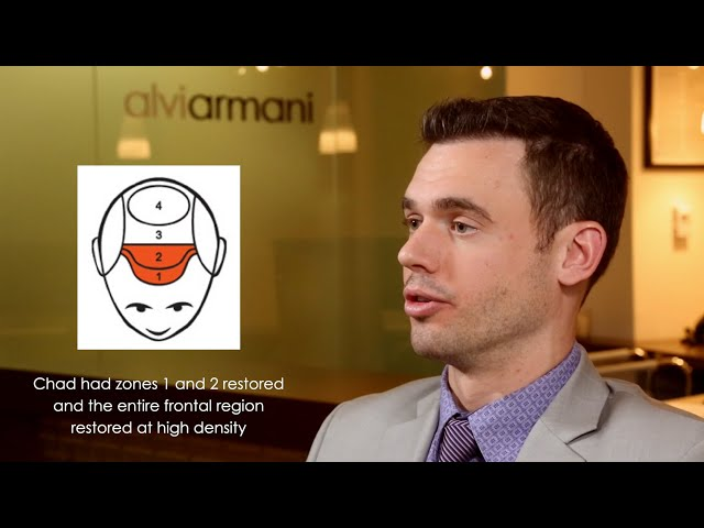 Hair Transplant Consultant Testimonial - Alvi Armani - Beverly Hills