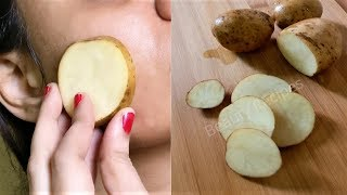 i rub Potato on my face &amp it removed my Dark spots and hyperpigmentation in 30 days