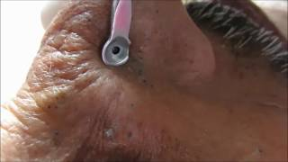Repeat youtube video The Bond Of Blackheads 007 Min.