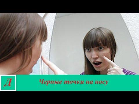Черные точки на носу - причины, лечение