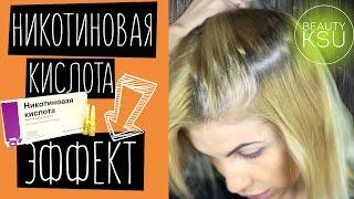 Эффект от никотиновой кислоты для волос. Маски для волос в домашних условиях Beauty Ksu