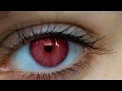 Rare beautiful eyes