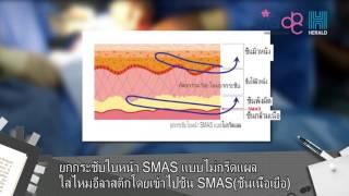 ศัลยกรรมไอดี: ยกกระชับใบหน้า SMAS แบบไม่กรีดแผล