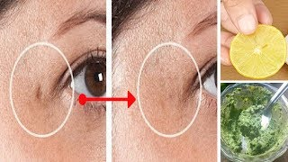 Chickenpox Treatment - HOW TO REMOVE CHICKEN POX SPOTS/SCARS PERMANENTLY | HOME REMEDIES