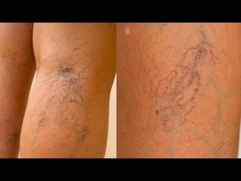 Лечение варикоза хозяйственным мылом! Народное средство проверенное временем! | конечностей | средство | народное | варикоза | лечение | варикоз | нижних | ногах | вены | вари