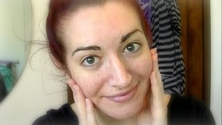 TOP 10 ACNE TIPS! Cheap, Natural Ways To Stop Acne & Get Clear Skin! 2013 Thumbnail