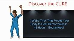Hemorrhoid Cream Cvs   The 48 Hour Cure   Simple