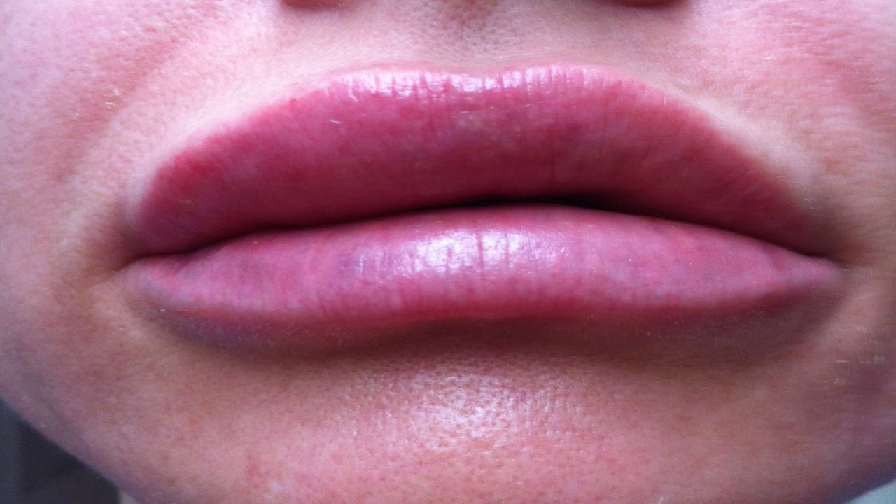 how to get rid of a swollen lip fast home remedies swollen