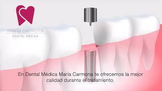 Implante Dental. Te ofrecemos el mejor tratamiento en Dental Médica Valencia