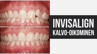 Invisalign hampaiden oikominen - ennen ja jälkeen - hammaslääkäri kertoo