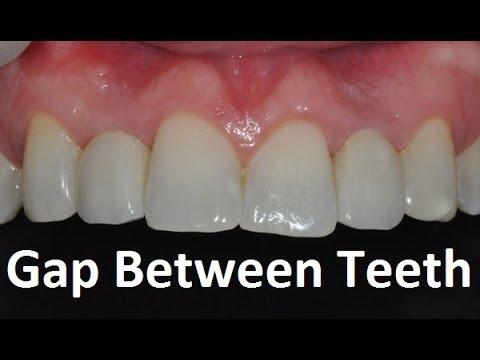 what is the normal space between teeth by prof john mew youtube