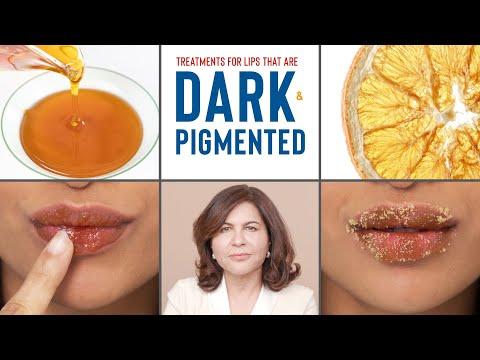 How To Treat DARK, PIGMENTED Lips | Dermatologist's Advice