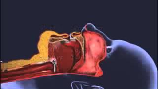 Sleep Apnea Treatment with CPAP