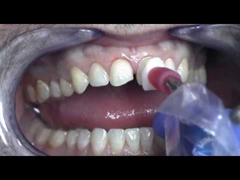 Prepless Veneers Procedure at Cosmetic Dental Associates San Antonio, TX Dental Practice