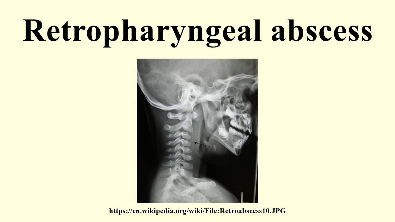 Retropharyngeal absces...