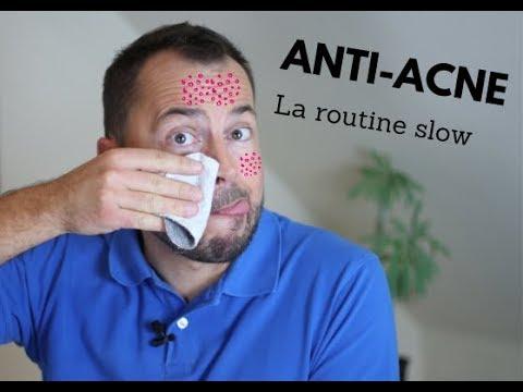 Ma routine anti-acné au naturel