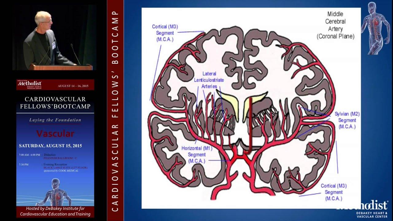 Neurovascular Anatomy, Physiology, and Carotid Imaging (John Eidt ...