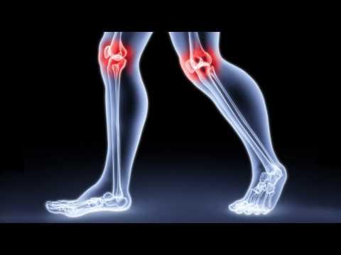 Как лечить растяжение связок колена? Как лечить разрыв связок колена в домашних условиях?