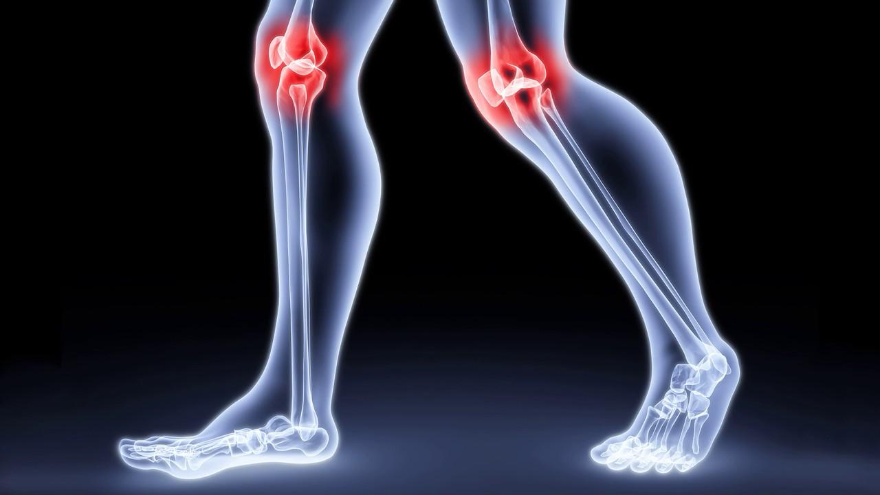 Растяжение связок коленного сустава: симптомы, лечение, сроки 2
