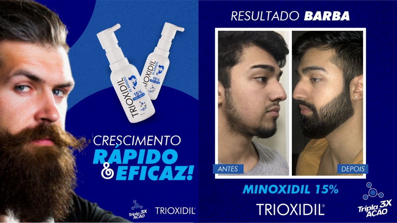 trinoxidil serve para barba