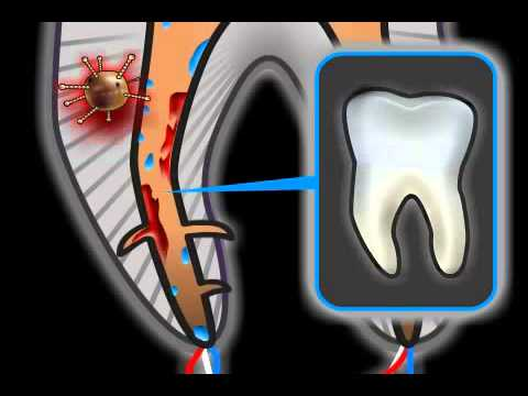 Root Canal Complications in Dentistry
