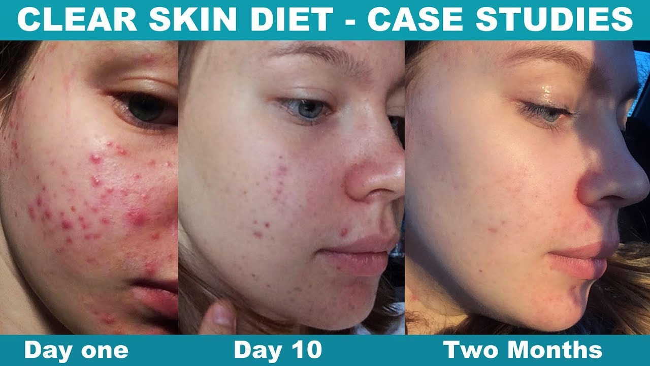 Change Your Diet Clear Your Acne