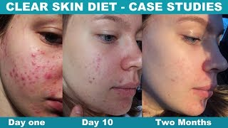 Change Your Diet, Clear Your Acne
