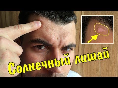 """ВЫЛЕЧИЛ """"солнечный лишай"""" за 1 месяц"""
