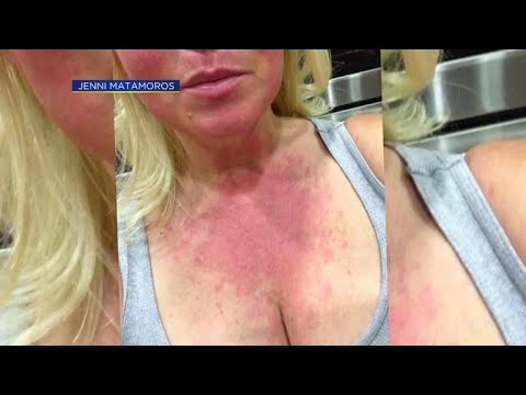 California community questions if fires caused mystery rashes