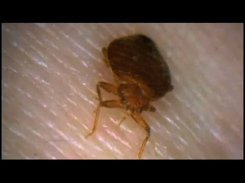 Consumer Headlines: Houston ranks 17 for top 50 bed bugs cities