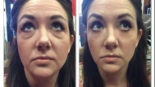 Instantly Ageless Review YouTube Calls It Facelift In A Bottle by Jeunesse