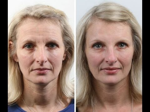 Jacqui's Forehead & Frown Anti-Wrinkle and Dermal Filler Treatment