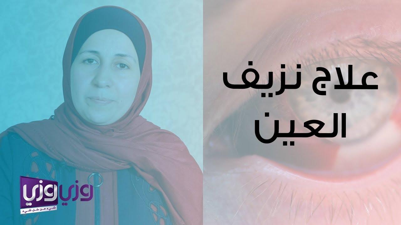 علاج نزيف العين ما بعد الكدمات